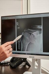 Digitales Röntgen Vimos Orthopädie
